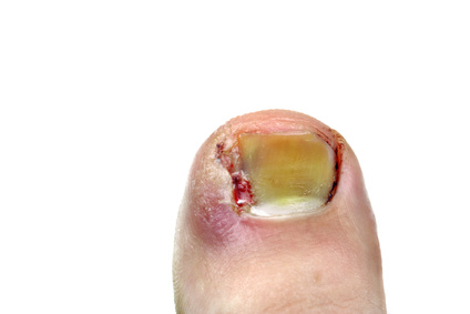 traitement psoriasis ongle pied