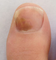 ongle-podiatre-mirabel-ste-therese-10-petit.png