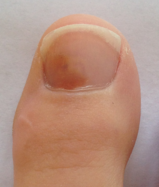 ongle-brun-podiatre-mirabel-ste-therese2.png