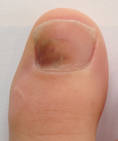 ongle-podiatre-mirabel-ste-therese-11-petit.png