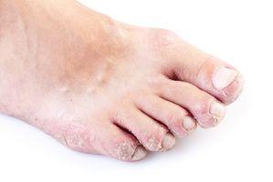 Atopitchesky la dermatite chez le loulou