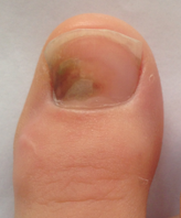 ongle-podiatre-mirabel-ste-therese-12-petit.png